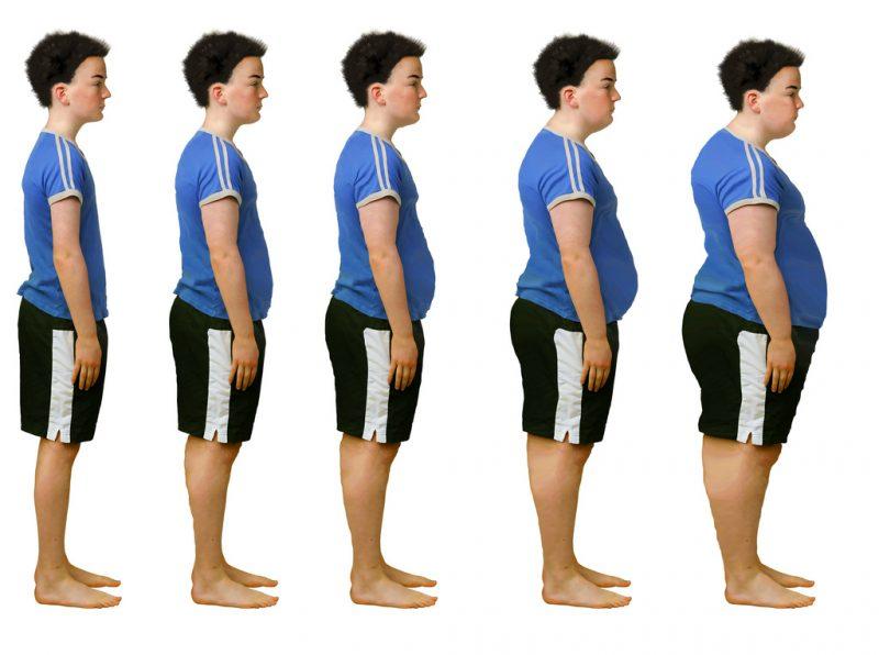 стадии ожирения у подростков